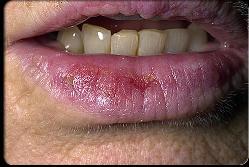 التهاب شاخی لب