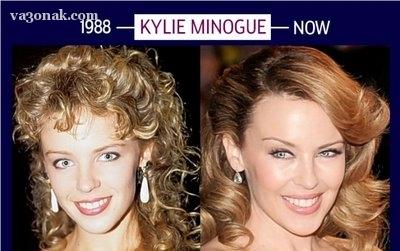 چهره کایلی پس از افزایش سن
