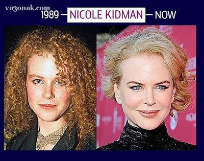 چهره نیکول کیدمن پس از افزایش سن