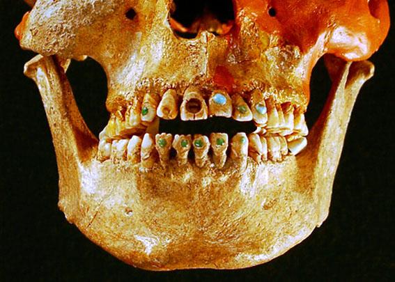 دندان های جواهرکاری شده