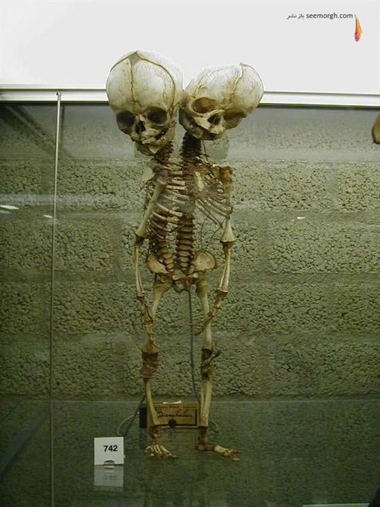 موزه تاریخی پزشکی موتر