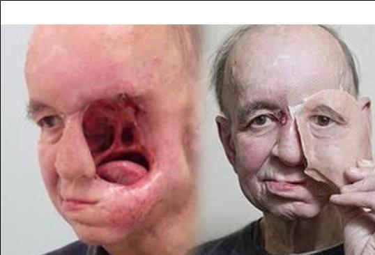 این مرد سمت چپ صورت خود را به علت سرطان از دست داد+عکس