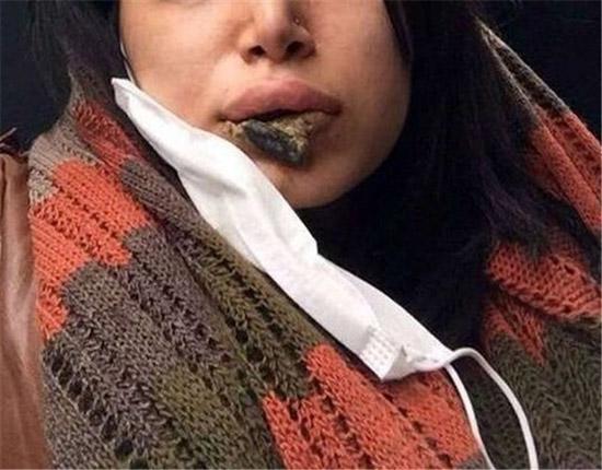 گروه بازیگران تلگرام ترکیدن لب دختر اهوازی که در لب هایش پروتز قرار داده بود ...
