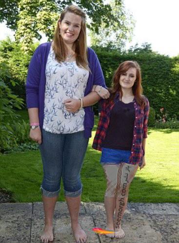 دختر 19ساله ای که به عنوان پا گنده ترین دختر انتخاب شد! + عکس