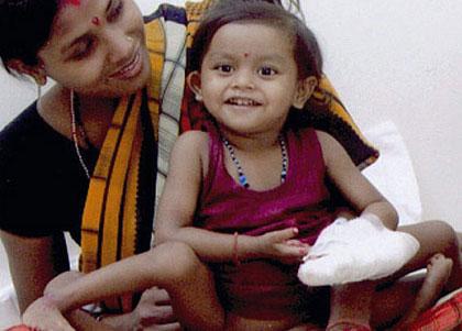 دختر 8 دست و پا، 2 معده و 4 کلیهای عمل شد