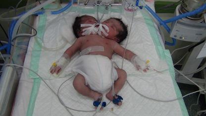مطالب داغ: تولد نوزادی دو سر در دزفول