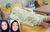 اعتراف دو اسید پاش: برادرمان مُرد، به زن و دخترش اسید پاشیدیم !